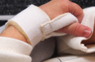 Bionix Medical Technologies - Preemie Hand Splint